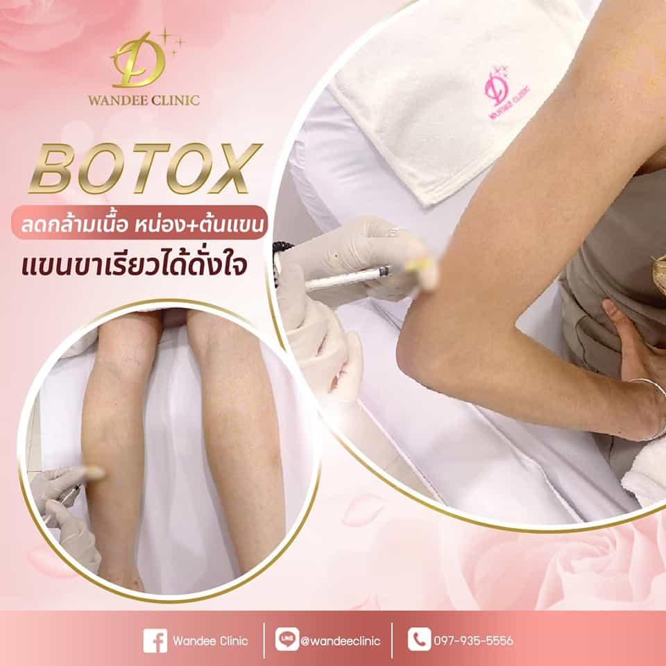 Botox ขา แขนเรียว